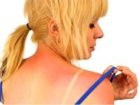 Что делать если обгорел на солнце