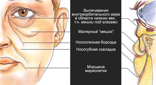 Мешки на лице