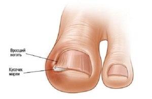 Боремся с вросшим ногтем