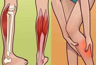 Что такое мышечные судороги и как с ними бороться?