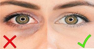 Убрать синяки под глазами